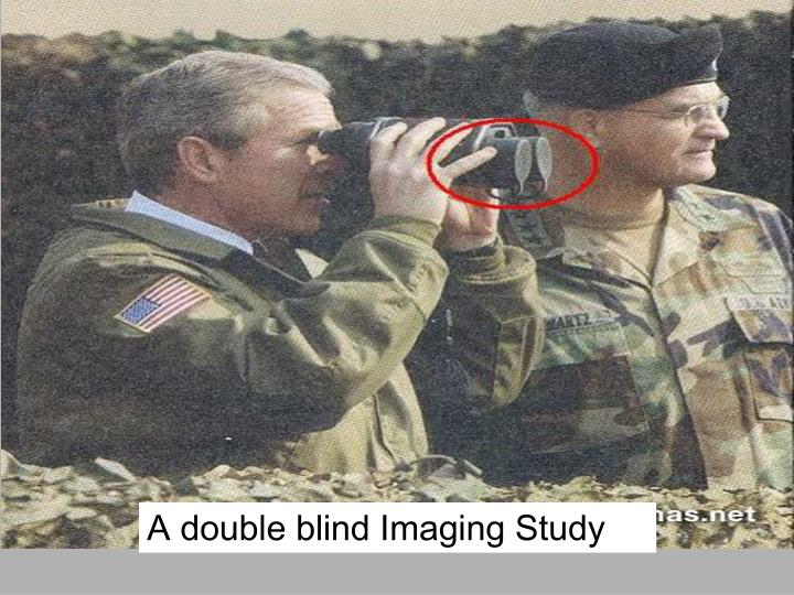 A double blind Imaging Study