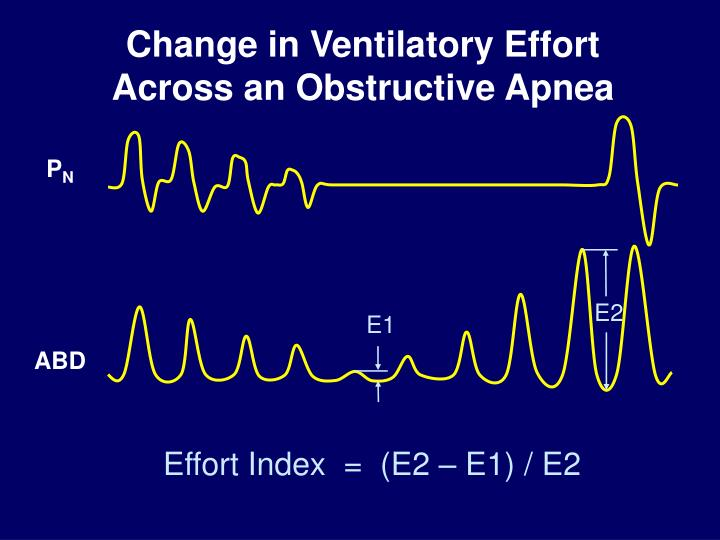 Change in Ventilatory Effort Across an Obstructive Apnea