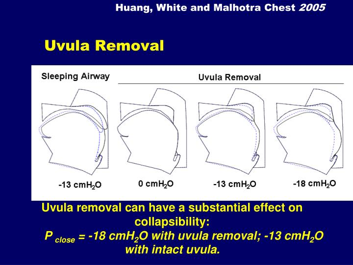 Huang, White and Malhotra Chest
