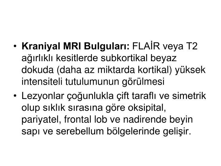 Kraniyal MRI Bulguları: