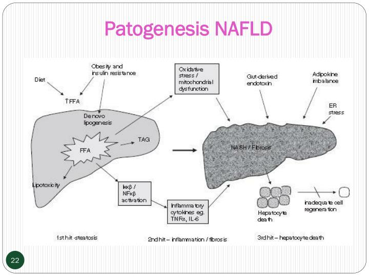 Patogenesis NAFLD