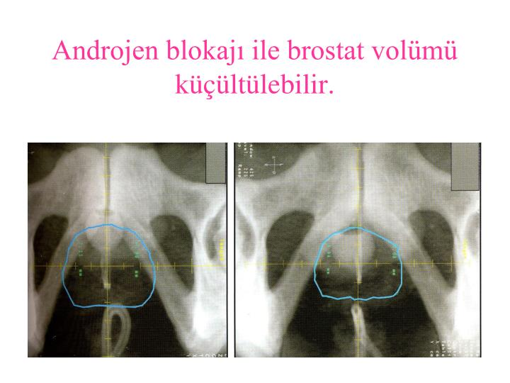 Androjen blokajı ile brostat volümü küçültülebilir.