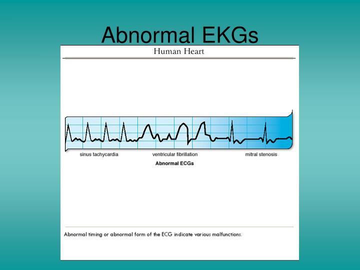 Abnormal EKGs