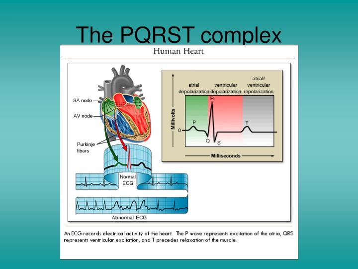 The PQRST complex