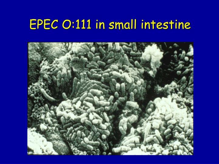 EPEC O:111 in small intestine