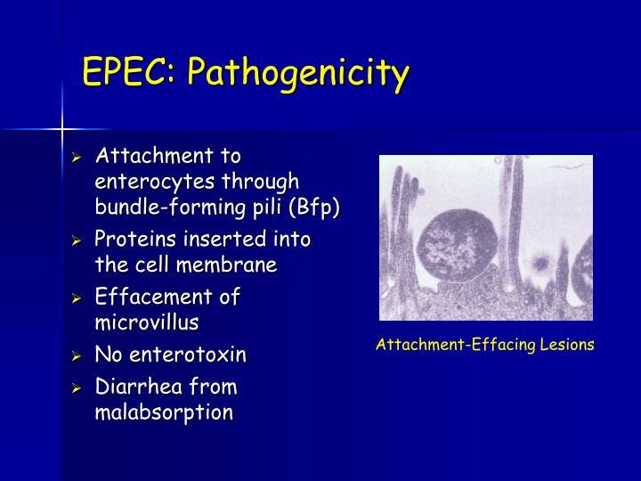 EPEC: Pathogenicity