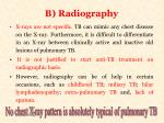 b radiography
