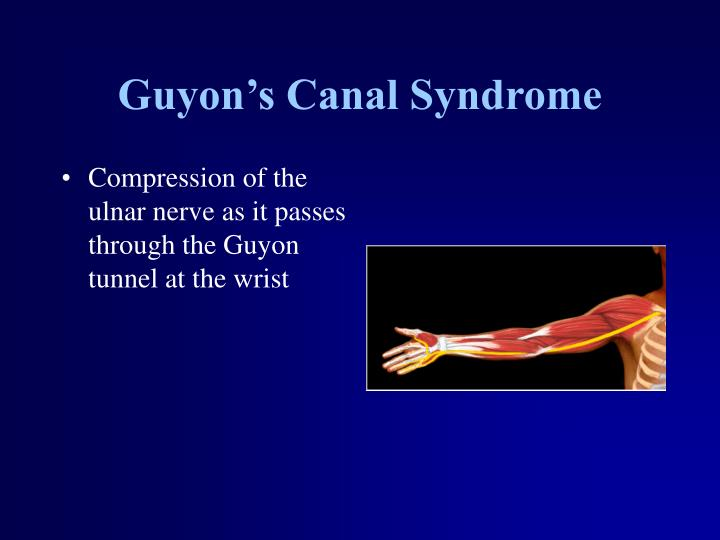 Guyon's Canal Syndrome