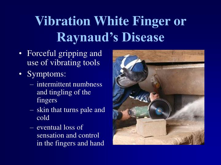 Vibration White Finger or Raynaud's Disease