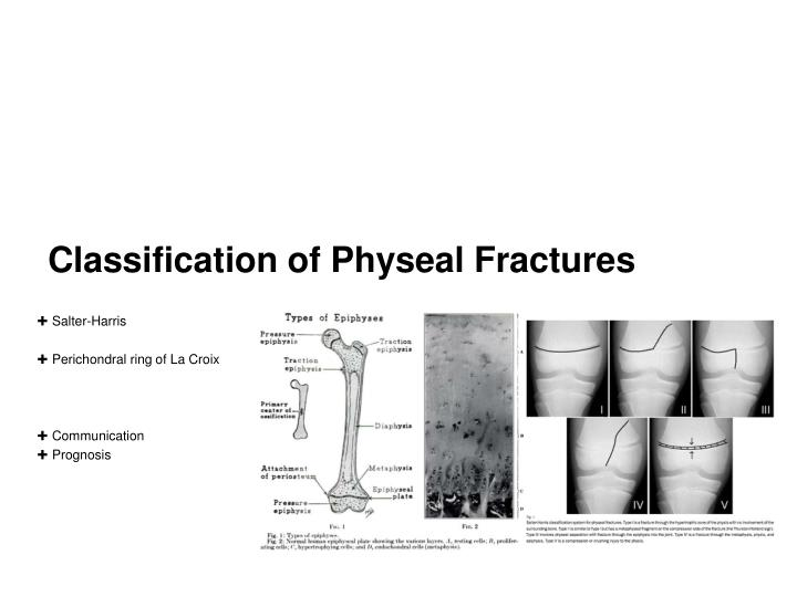 Classification of Physeal Fractures