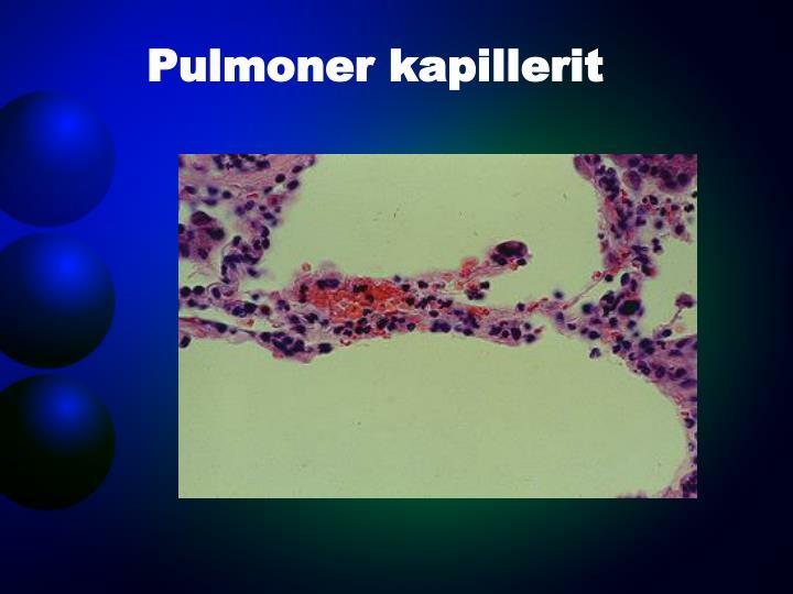 Pulmoner kapillerit
