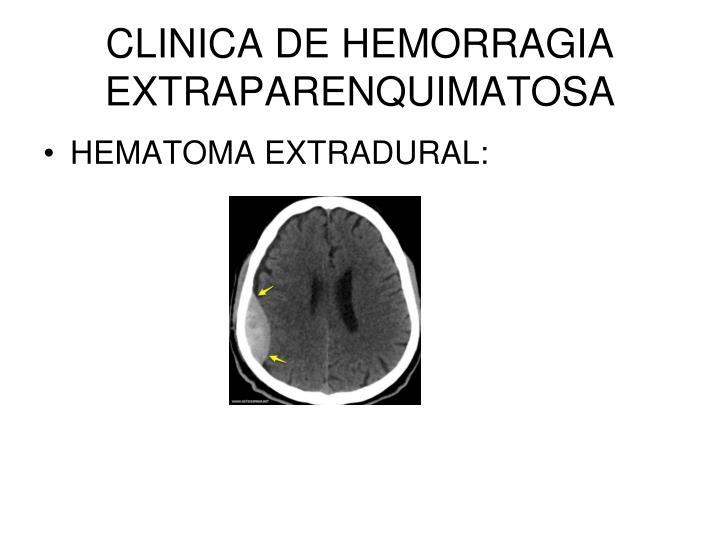 CLINICA DE HEMORRAGIA EXTRAPARENQUIMATOSA