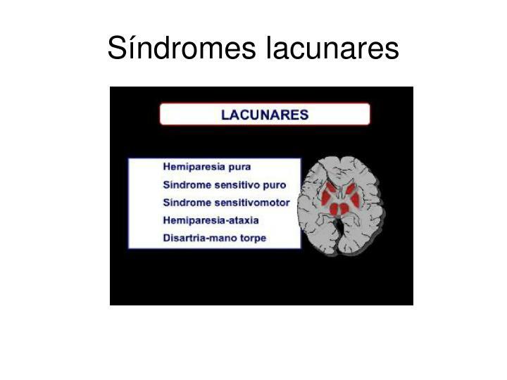 Síndromes lacunares