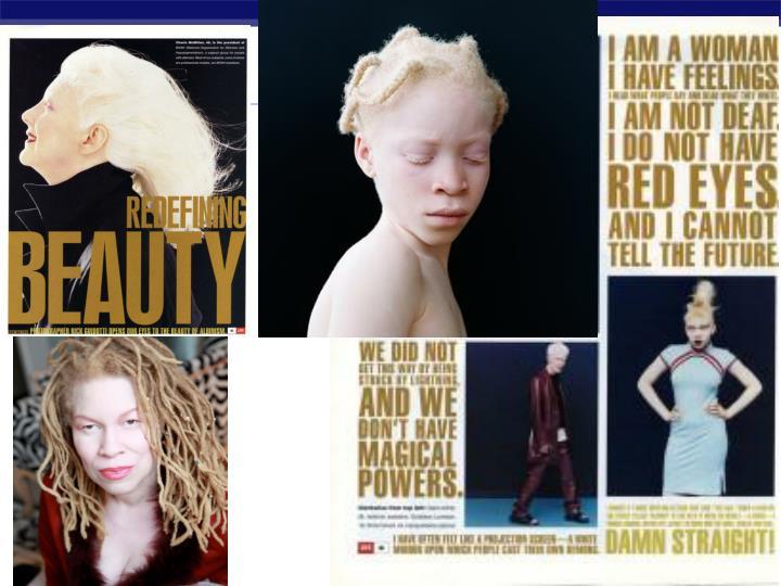 OCA1 albino