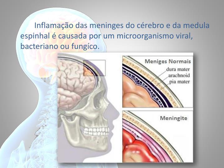Inflamação das meninges do cérebro e da medula espinhal é causada por um microorganismo viral, bacteriano ou