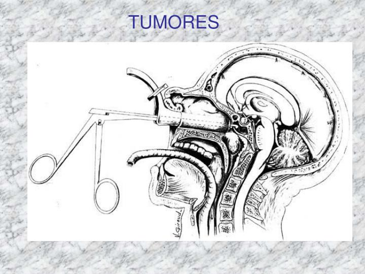TUMORES