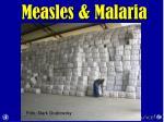measles malaria