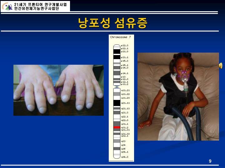 낭포성 섬유증