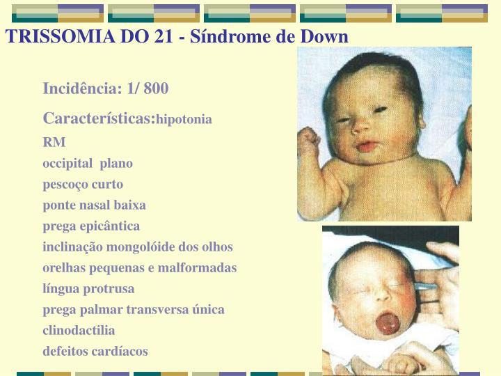 TRISSOMIA DO 21 - Síndrome de Down
