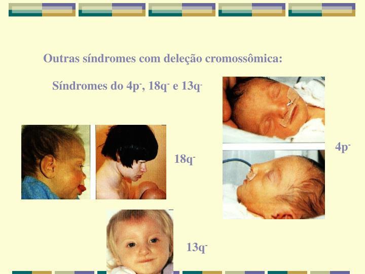 Outras síndromes com deleção cromossômica: