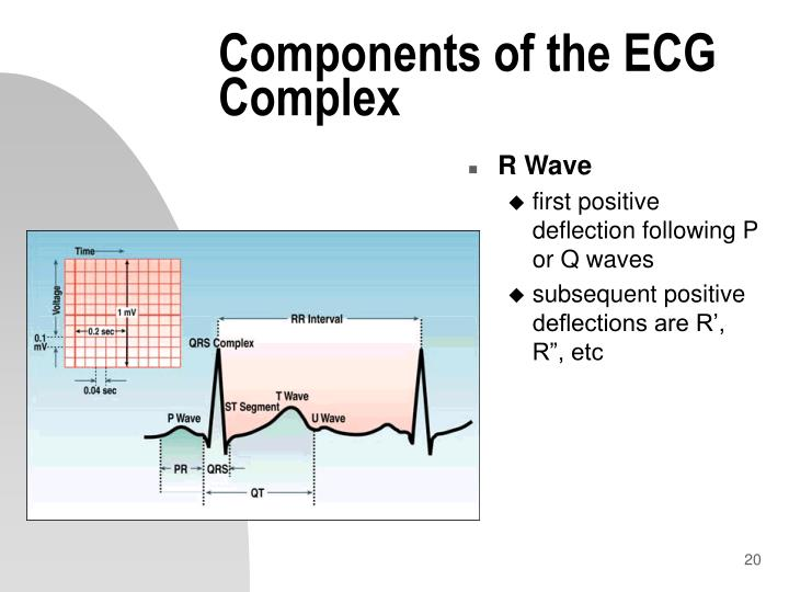Components of the ECG Complex