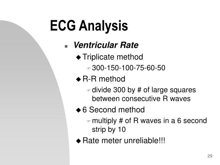 ECG Analysis