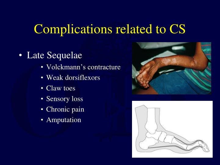 Complications related to CS
