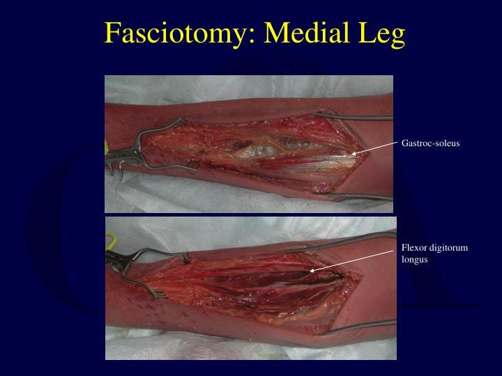 Fasciotomy: Medial Leg