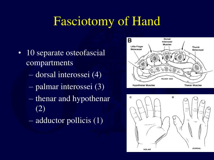 Fasciotomy of Hand