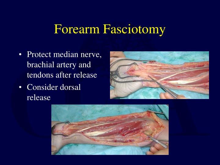 Forearm Fasciotomy