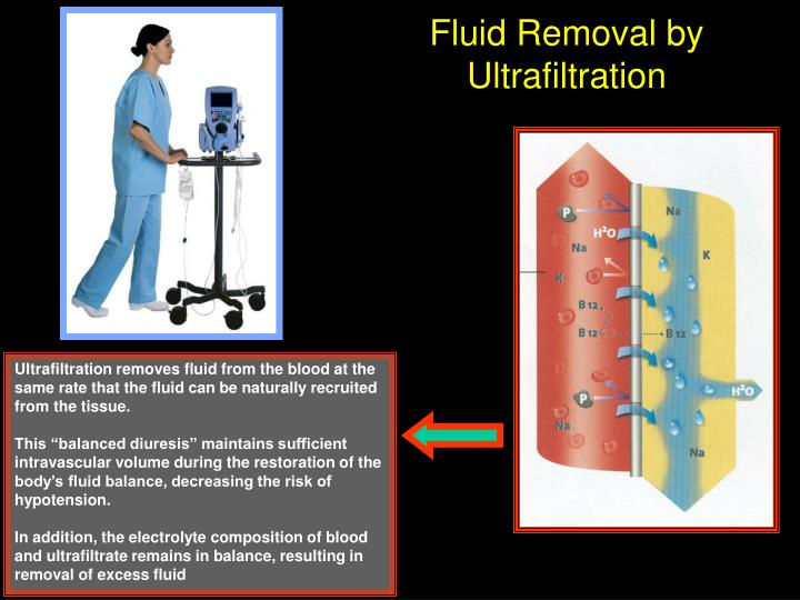 Fluid Removal by Ultrafiltration