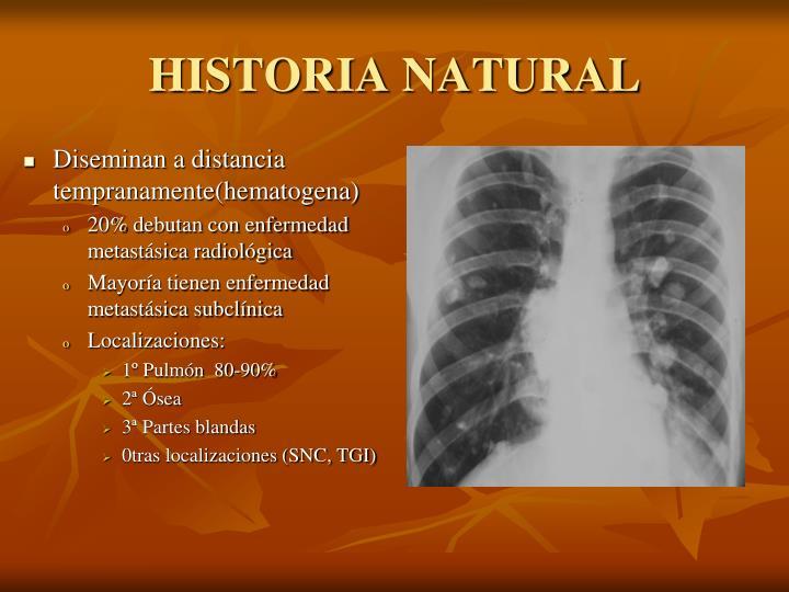 Diseminan a distancia tempranamente(hematogena)