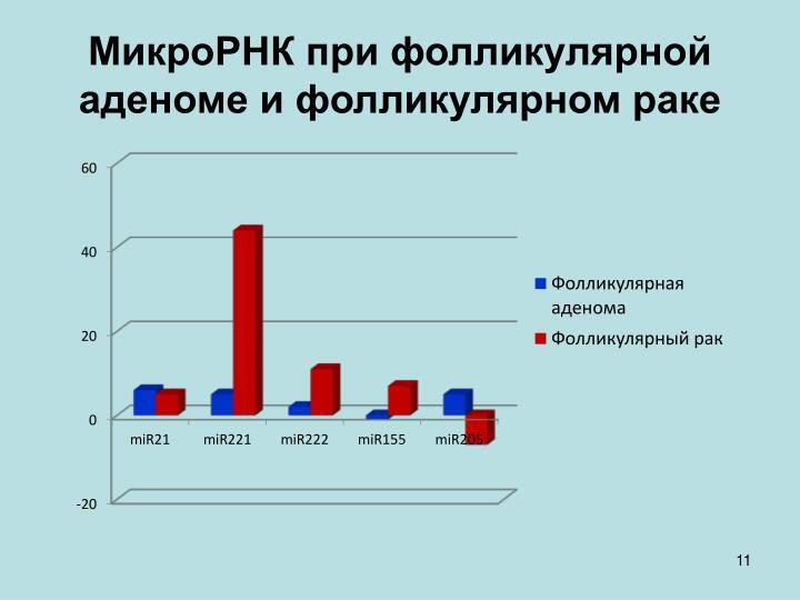 МикроРНК при фолликулярной аденоме и фолликулярном раке