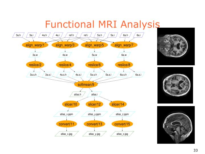 Functional MRI Analysis