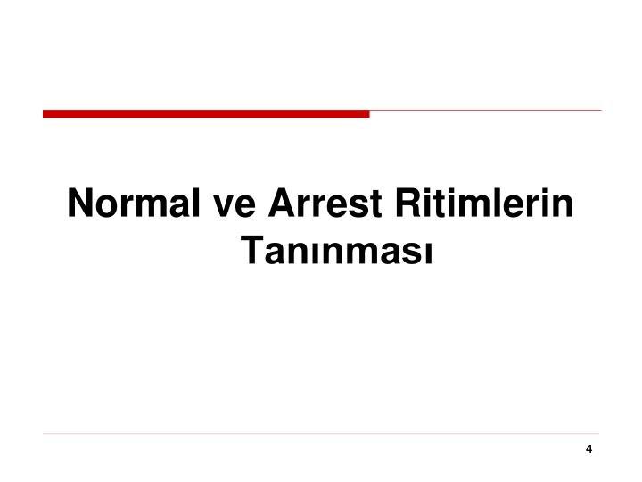 Normal ve Arrest Ritimlerin Tanınması