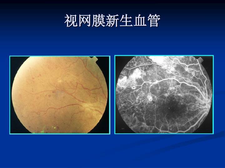 视网膜新生血管