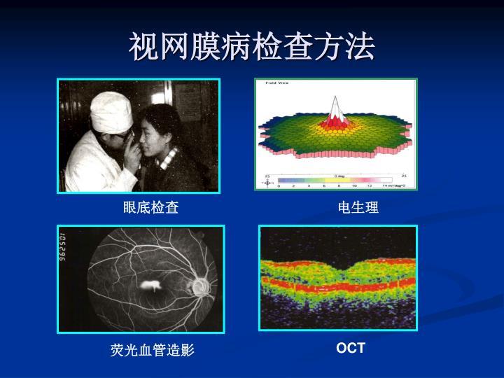 视网膜病检查方法