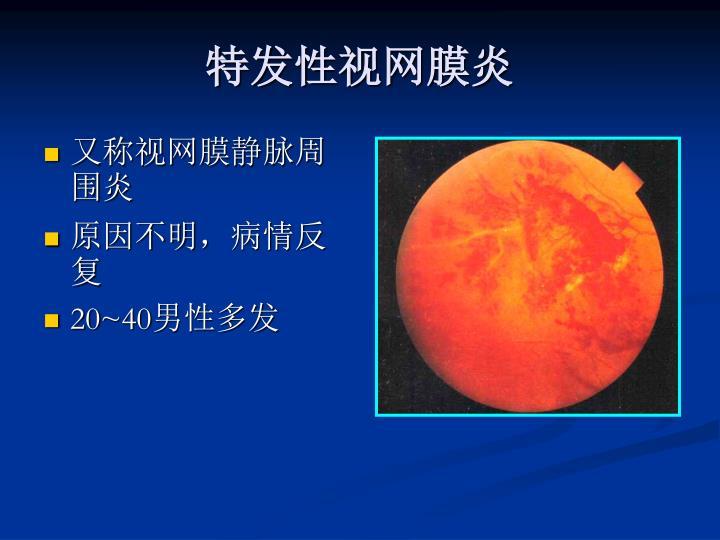 特发性视网膜炎