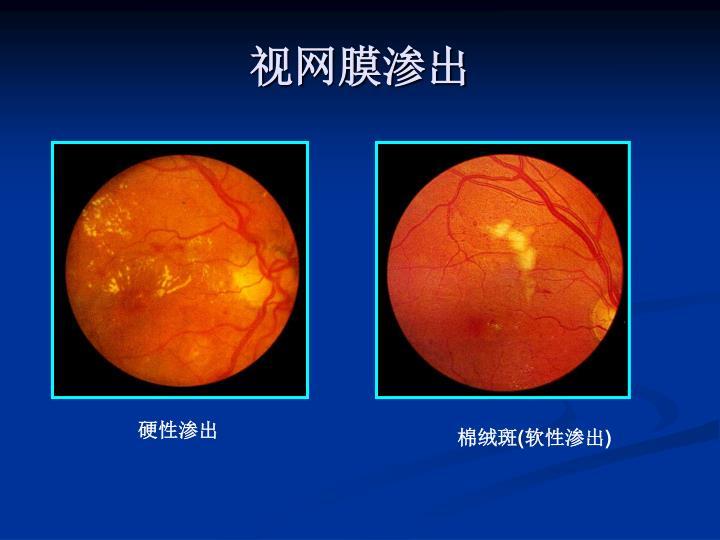 视网膜渗出