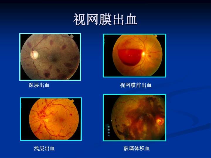 视网膜出血