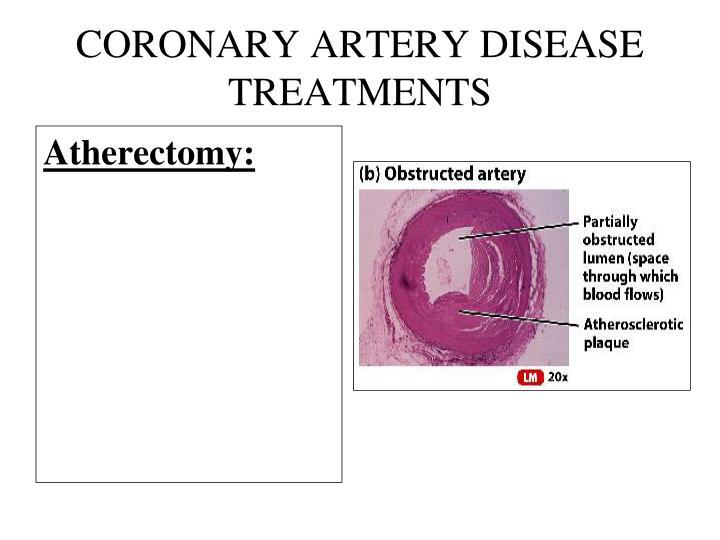 Coronary Heart Disease Treatment