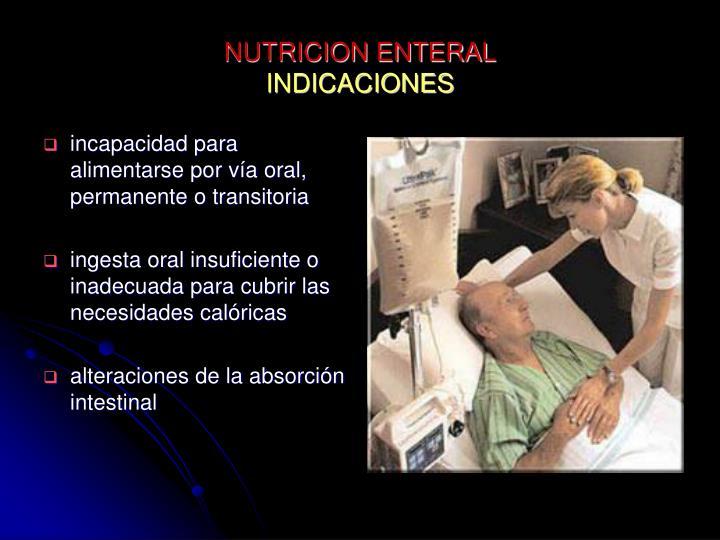 NUTRICION ENTERAL