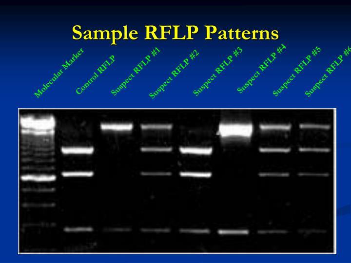 Sample RFLP Patterns