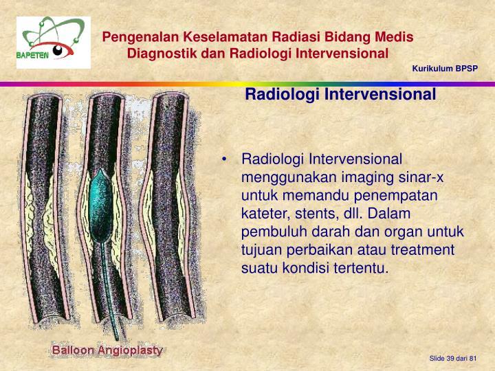 Radiologi Intervensional