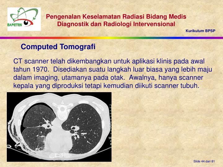 CT scanner telah dikembangkan untuk aplikasi klinis pada awal tahun 1970.  Disediakan suatu langkah luar biasa yang lebih maju dalam imaging, utamanya pada otak.  Awalnya, hanya scanner kepala yang diproduksi tetapi kemudian diikuti scanner tubuh.