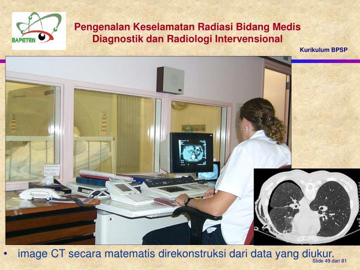 image CT secara matematis direkonstruksi dari data yang diukur.