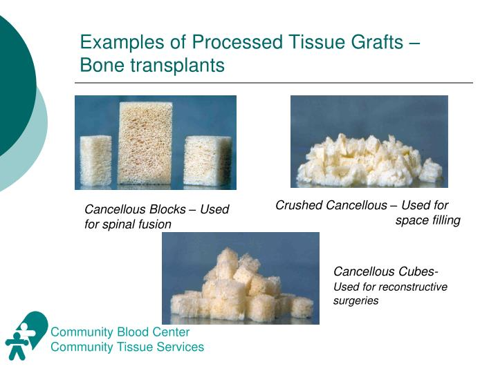 Examples of Processed Tissue Grafts – Bone transplants