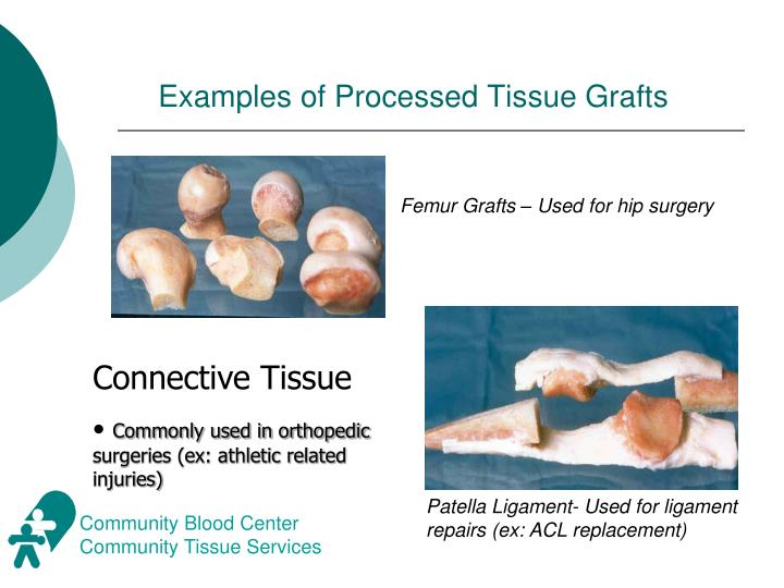 Examples of Processed Tissue Grafts