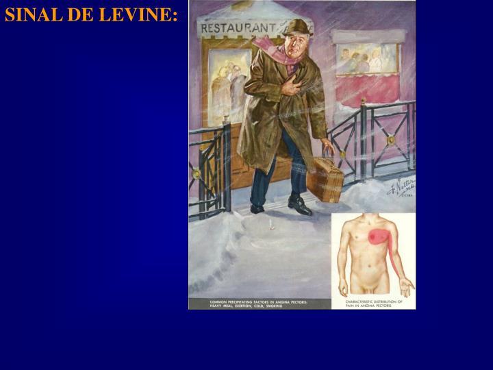 SINAL DE LEVINE:
