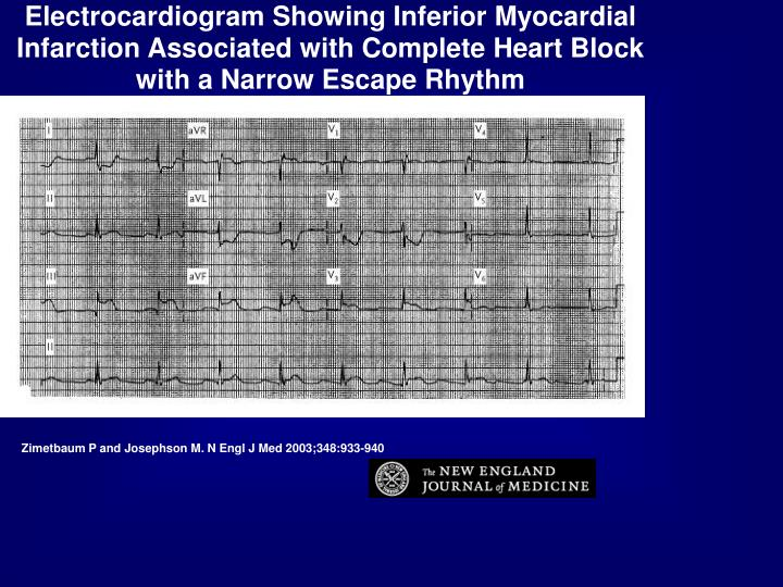 Electrocardiogram Showing Inferior Myocardial Infarction Associated with Complete Heart Block with a Narrow Escape Rhythm
